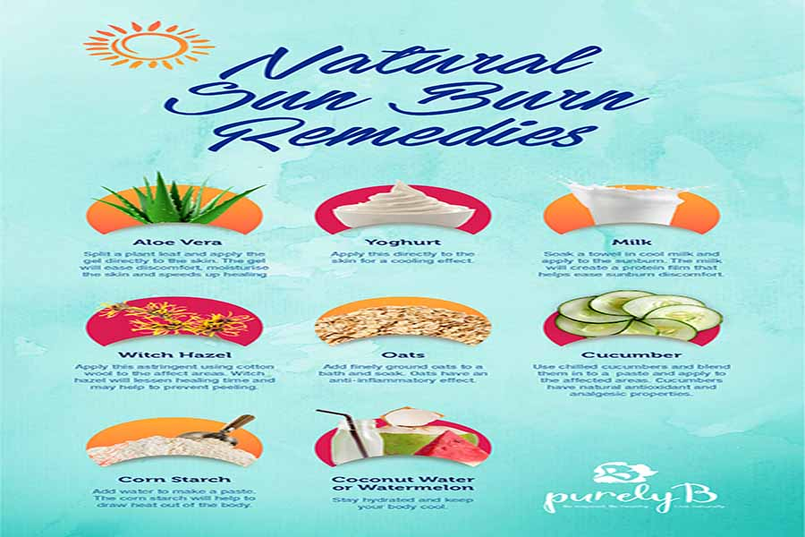 Natural Sunburn Remedies v2 01