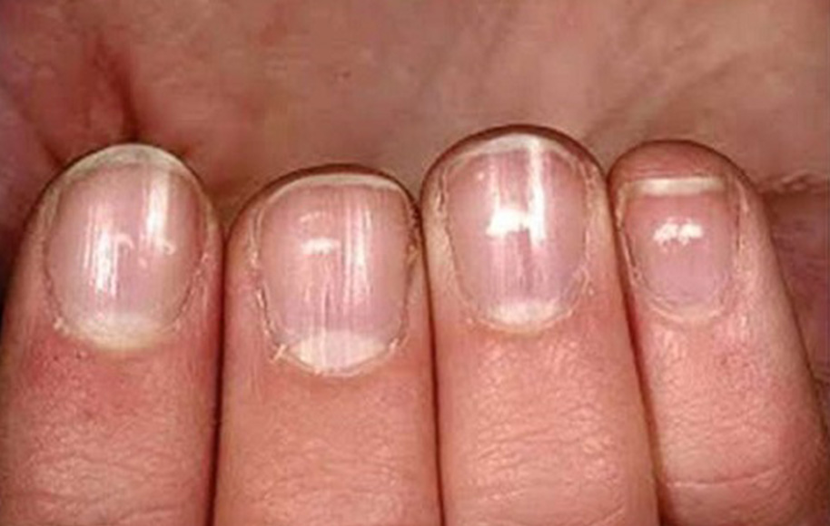 What Are Your Nails Telling You?