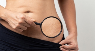 Stretch Marks: Why You Get Them And How To Naturally Reduce Their Appearance