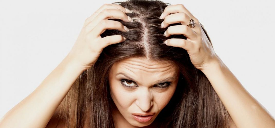 Oily Scalp? Try These Natural Remedies At Home!