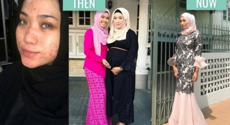 How This Mother Cleared Her Skin Post-Pregnancy & Lost 30kg Naturally