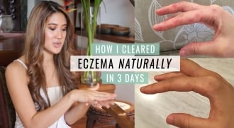 How Jesrina Arshad Cleared Her Eczema Flare-Up Naturally In 3 Days