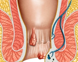 Getting To Know Hemorrhoids