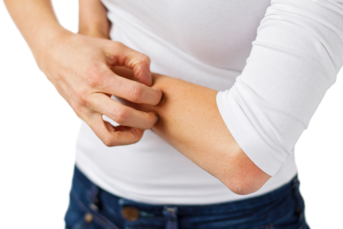 8 Ways To Keep Eczema Under Control